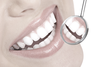 complete_dental_examination_3