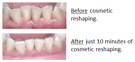 cosmetic_reshaping_before_after_1