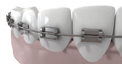 dental_braces