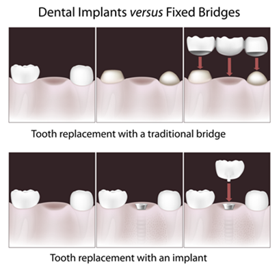 dental_implants_vs_fixed_bridge