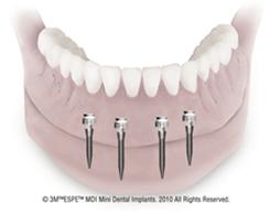 implant_dentures