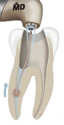 lasers_and_root_canal_treatment_1