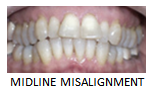 midline_misalignment