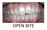 open_bite