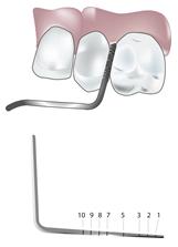 periodontal_measurement